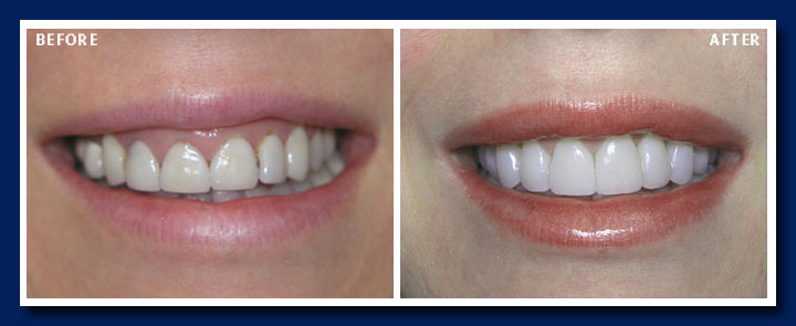 123 Kerrisdale Dental Centre Before And After Gallery