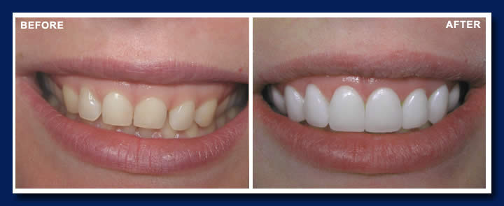 123 Kerrisdale Dental Centre Before and After Gallery - 123