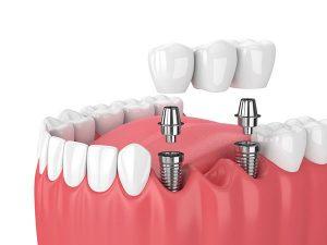 Dental Implant Supported Bridge