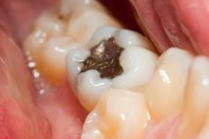 life span of a dental filling