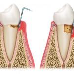 picture of gum disease