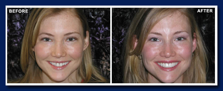 Notice what a change filling in the spaces with these no preparation veneers can make to a smile.